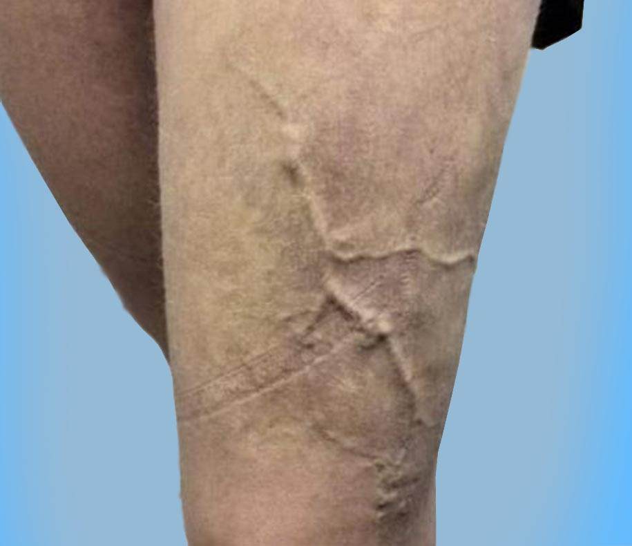 nuova clinica vascolare vene varicose venas varicosas curare varices
